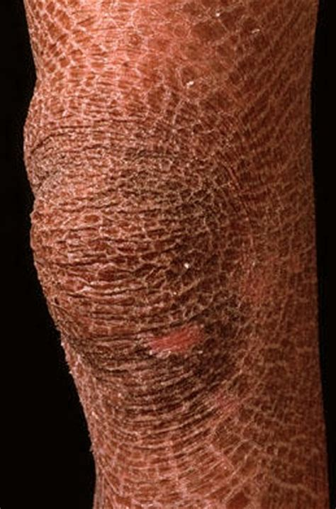 Ichthyosis - Pictures, Symptoms, Causes and Treatment