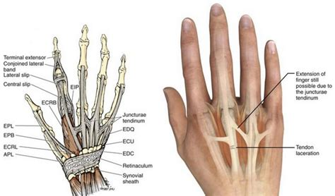Extensor Tendon Injury Hand Therapy