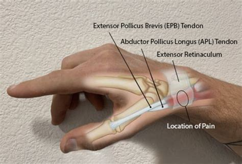 Thumb-Sided Wrist Pain in Climbers: A Case for De Quervain