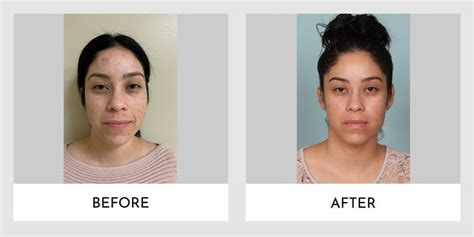 Forever Young Bbl Laser Treatment Before and After 03