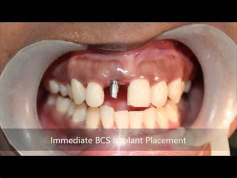 Severe gum abscess tooth extraction and immediate BCS