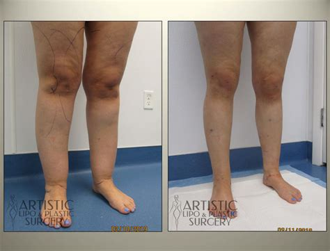 Lipedema Surgery Before and After Pictures - Art Lipo